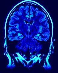 A rettegett agyvérzés